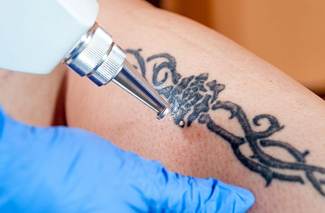 Different Facts Involving Removing a Tattoo